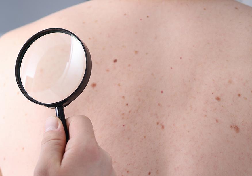 Chăm sóc da cho nam là cách giúp bạn tránh được tình trạng mắc các bệnh da liễu