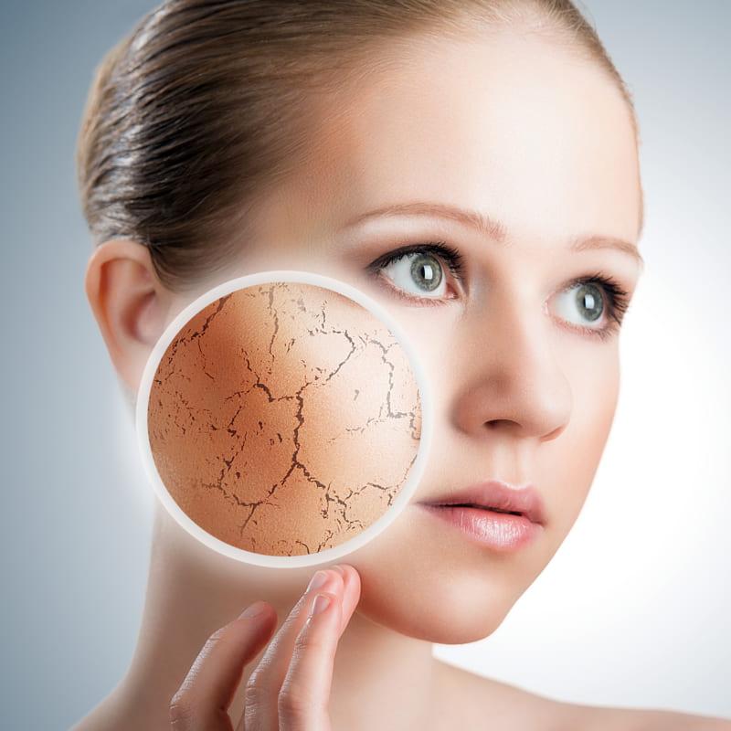 da khô cần sử dụng các dạng mỹ phẩm dành cho da khô phù hợp